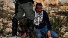 """استشهاد الشاب """"فادي وشحة"""" متأثراً بجراحه في رام الله"""